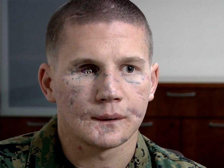 William Kyle Carpenter Medal of Honor recipient